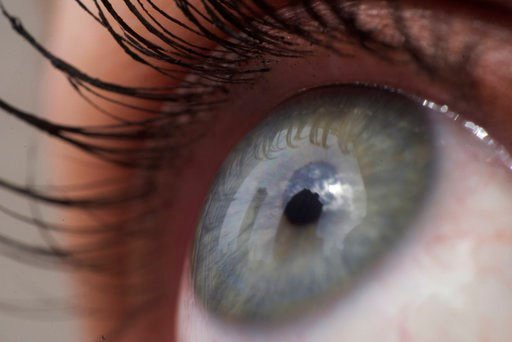 (AP Photo/Patrick Sison). This Thursday, April 12, 2018 photo shows the eye of a woman in New York. According to a study released on Friday, April 12, 2018, fish oil supplements failed to help people with dry eye when put to a scientific test.