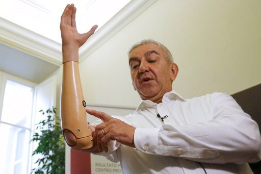 (AP Photo/Gregorio Borgia). Marco Zambelli shows his prosthetic hand during an interview with the Associated Press in Rome Thursday, May 10, 2018. An Italian government-funded research institute and prosthetic maker unveiled a new robotic hand that the...