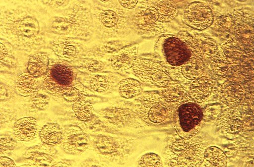 (Dr. E. Arum, Dr. N. Jacobs/CDC via AP, File). FILE - This 1975 file microscope image made available by the the Centers for Disease Control and Prevention shows chlamydia trachomatis bacteria magnified 200 times. The number of cases of STDs - chlamydia...
