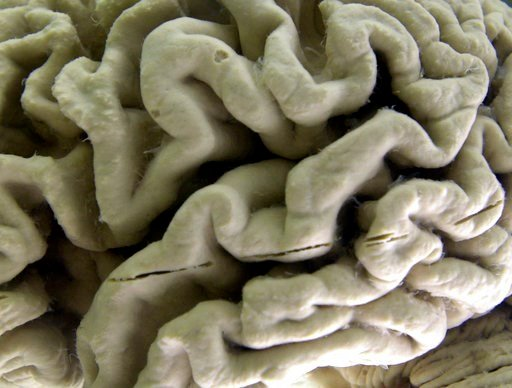 (AP Photo/David Duprey). FILE - This Oct. 7, 2003 file photo shows a closeup of a human brain affected by Alzheimer's disease on display at the Museum of Neuroanatomy at the University at Buffalo in Buffalo, N.Y. Autopsies on nearly 1,300 older people ...