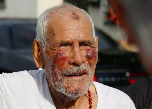 (AP Photo/Damian Dovarganes). Rodolfo Rodriguez thanks well-wishers for their help, as he talks to the media gathered outside his home in Los Angeles Wednesday, July 11, 2018. Rodriguez was out for a walk when he was beaten on the night of July 4 on a ...