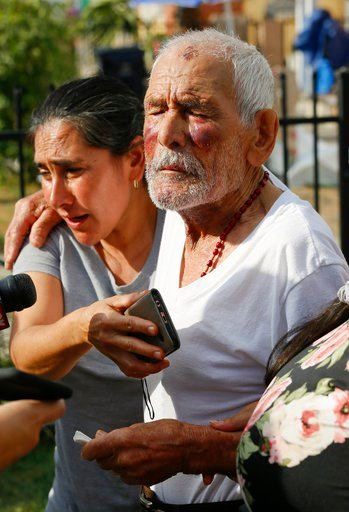 (AP Photo/Damian Dovarganes). Aurelia Rodriguez, left, holds her father, Rodolfo Rodriguez, as he thanks well-wishers for their help, while he talks to the media gathered outside his home in Los Angeles Wednesday, July 11, 2018. Rodolfo Rodriguez was o...