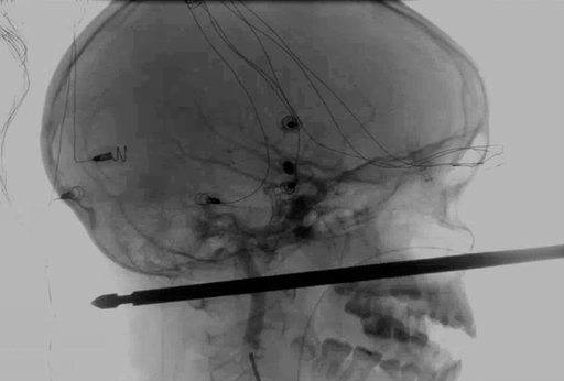 (Medical News Network via AP). This X-ray provided by the Medical News Network shows a meat skewer impaled in the skull of Xavier Cunningham after an accident at his home Saturday, Sept. 8, 2018, in Harrisonville, Mo. Cunningham's experience began when...